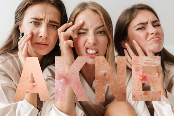 Jugendliche Aknehaut braucht besondere Beachtung und Pflege