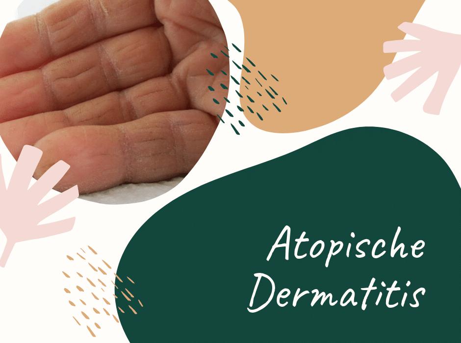 Atopische Dermatitis
