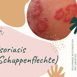 Schuppenflechte - entzündliche Dermatose mit juckenden und stark schuppenden Hautarealen