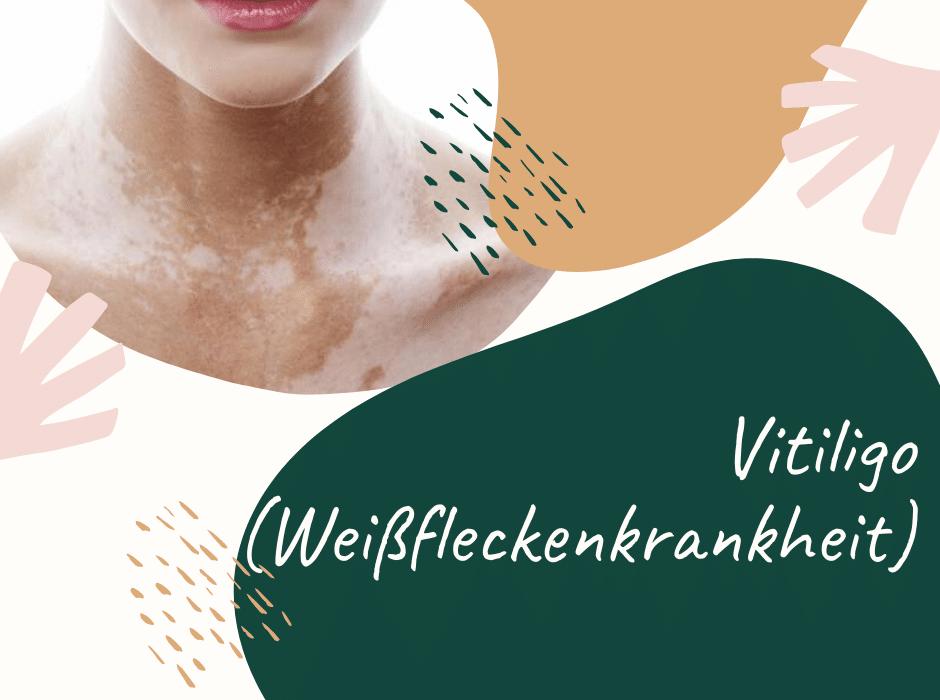 Vitiligo (Leukodermie)