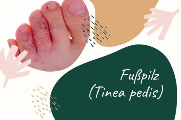 Fußpilz - infektiöse Hauterkrankung durch indirekte Übertragung per Kontakt- oder Schmierinfektion
