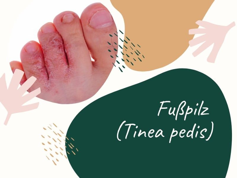 Fußpilz (Tinea pedis)